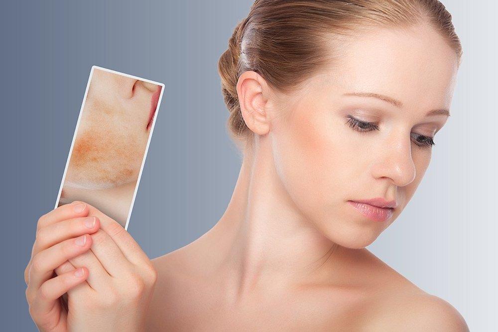 Воспаленная кожа лица