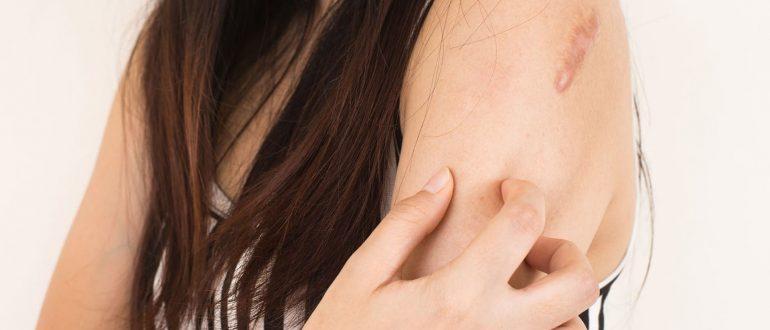 болезнь жибера