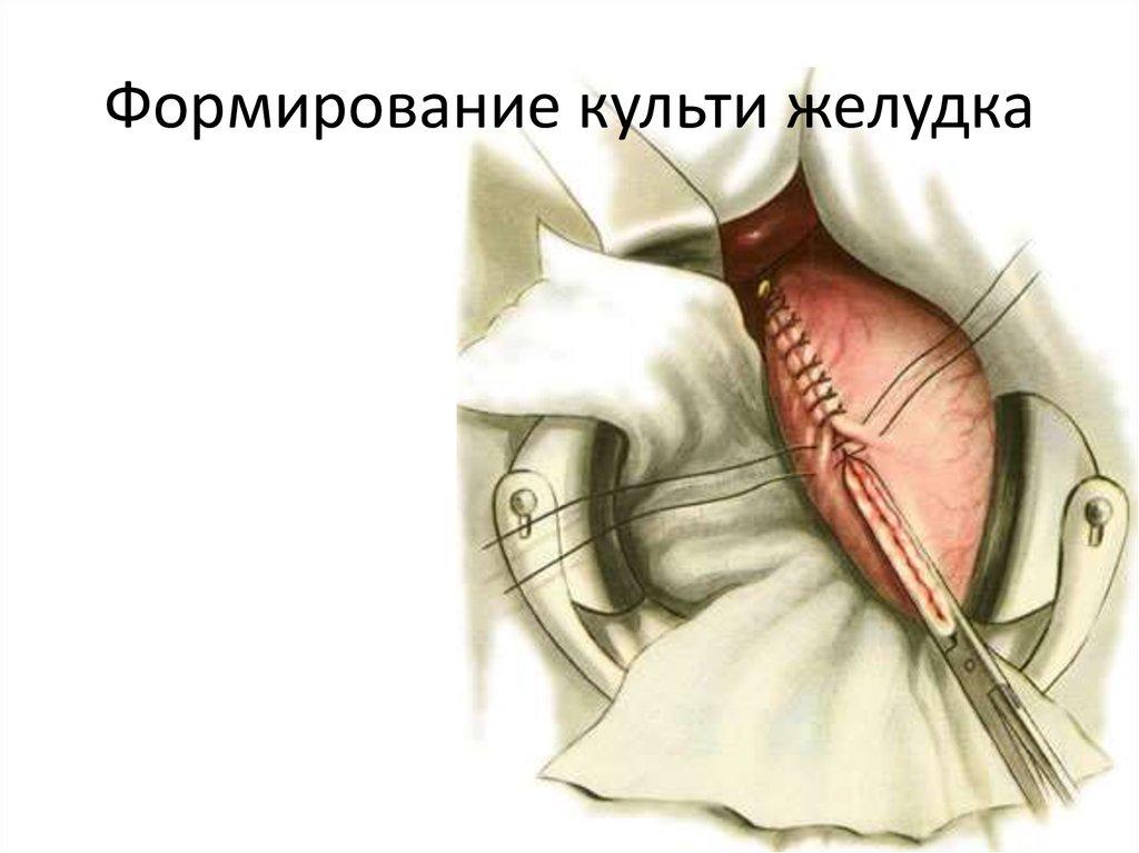 культи желудка